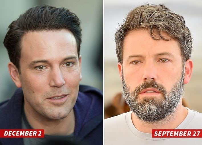 Ben Affleck before and after plastic surgery