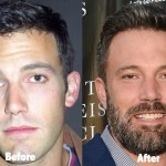 Ben Affleck before and after plastic surgery (20)