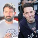 Ben Affleck before and after plastic surgery (25)