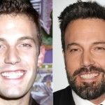 Ben Affleck before and after plastic surgery (35)