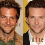 Bradley Cooper before and after plastic surgery