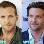 Bradley Cooper before and after plastic surgery (15)