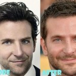 Bradley Cooper before and after plastic surgery (16)