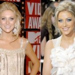 Julianne Hough before and after plastic surgery (26)