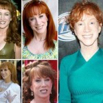 Kathy Griffin before and after plastic surgery (0)