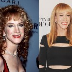 Kathy Griffin before and after plastic surgery (1)