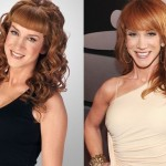 Kathy Griffin before and after plastic surgery (10)