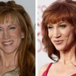 Kathy Griffin before and after plastic surgery (11)