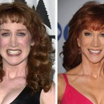 Kathy Griffin before and after plastic surgery (18)