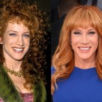 Kathy Griffin before and after plastic surger