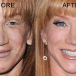Kathy Griffin before and after plastic surgery (22)