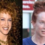Kathy Griffin plastic surgery (19)