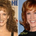 Kathy Griffin plastic surgery (20)