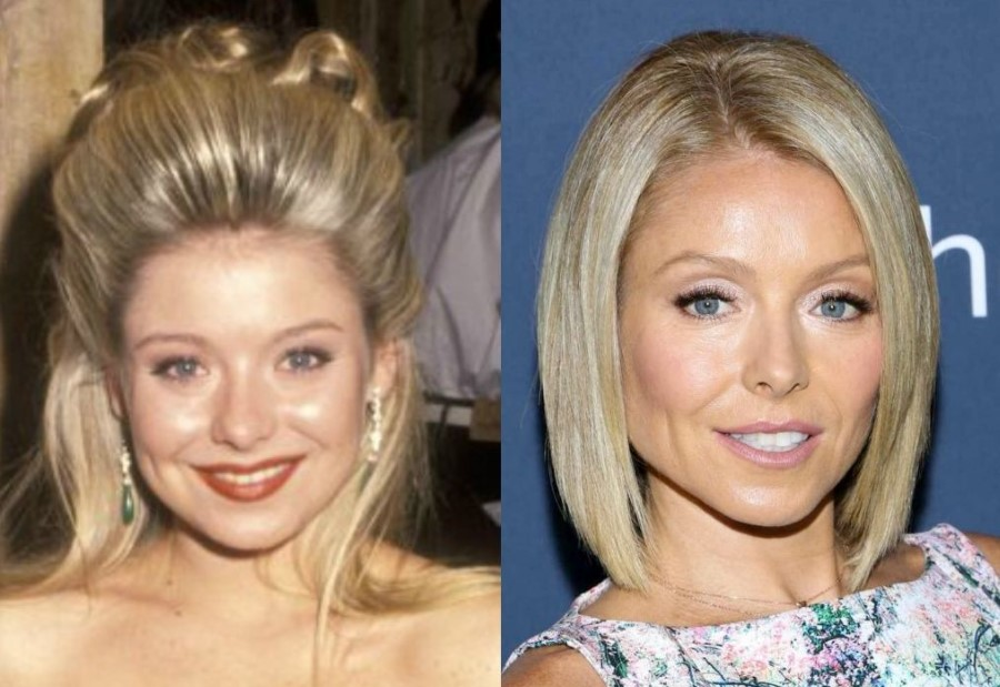 Kelly Ripa before and after plastic surgery (13)