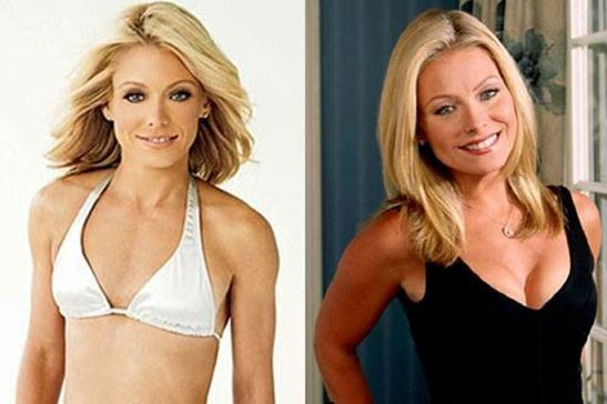 Kelly Ripa before and after plastic surgery (16)