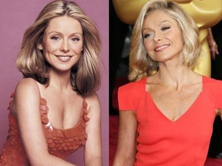 Kelly Ripa before and after plastic surgery (6)