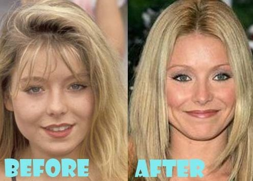 Young Breast Augmentation Before And After Kelly Ripa plastic sur...