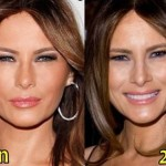 Melania Trump before and after plastic surgery (19)