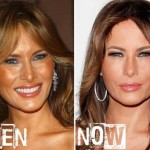 Melania Trump before and after plastic surgery (21)
