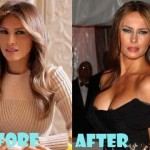 Melania Trump before and after plastic surgery (23)