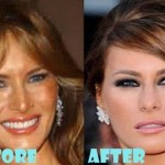 Melania Trump before and after plastic surgery (24)