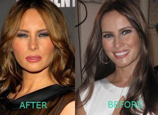 Melania Trump before and after plastic surger