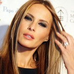 Melania Trump plastic surgery (1)