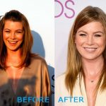 Ellen Pompeo before and after plastic surgery (12)