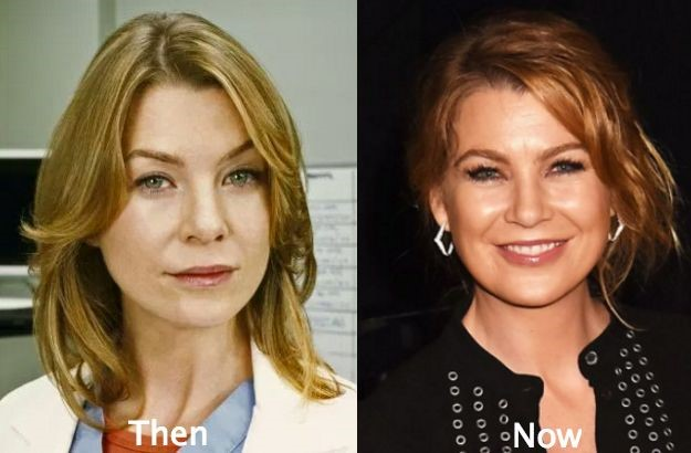 Ellen Pompeo before and after plastic surgery (13)
