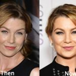 Ellen Pompeo before and after plastic surgery (14)