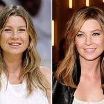 Ellen Pompeo before and after plastic surgery (15)