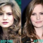 Jennifer Jason Leigh before and after plastic surgery (2)