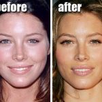 Jessica Biel before and after plastic surgery (11)