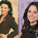 Julia Louis-Dreyfus before and after plastic surgery (15)