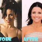 Julia Louis-Dreyfus before and after plastic surgery (16)