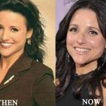 Julia Louis-Dreyfus before and after plastic surgery (17)