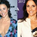 Julia Louis-Dreyfus before and after plastic surgery (19)