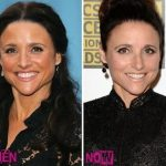 Julia Louis-Dreyfus before and after plastic surgery (20)