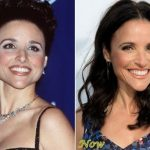 Julia Louis-Dreyfus before and after plastic surgery (21)