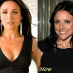 Julia Louis-Dreyfus before and after plastic surgery (22)