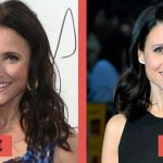 Julia Louis-Dreyfus before and after plastic surgery (24)
