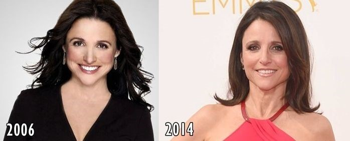 Julia Louis-Dreyfus before and after plastic surgery