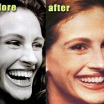 Julia Roberts before and after dental plastic surgery (36)