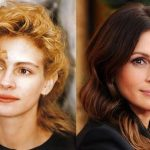 Julia Roberts before and after plastic surgery (13)