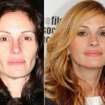 Julia Roberts before and after plastic surgery (14)