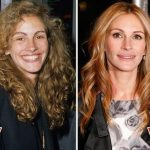 Julia Roberts before and after plastic surgery (3)