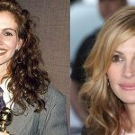 Julia Roberts before and after plastic surgery (37)