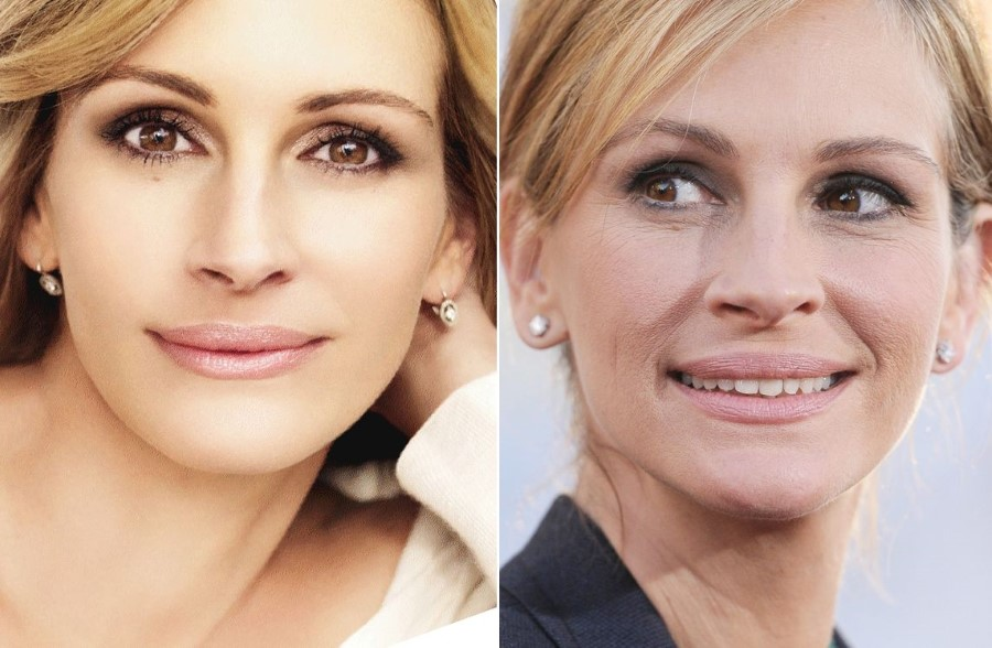 Julia Roberts before and after plastic surgery (16)
