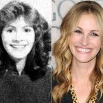 Julia Roberts plastic surgery then and now (15)