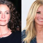 Julia Roberts plastic surgery then and now (2)